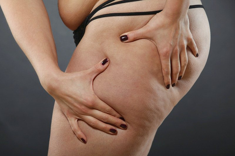 Via la cellulite con la Carbossiterapia