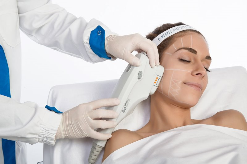 ULTHERAPY : Il lifting non chirurgico che ha conquistato le star di Hollywood